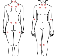 Fibromyalgia – Symptoms, Diagnosis and Treatment