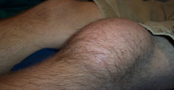 Prepatellar Bursitis or Housemaid Knee