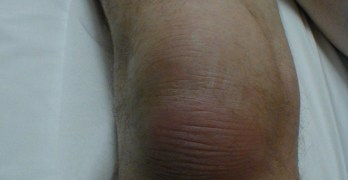 Infrapatellar Bursitis – Presentation and Treatment
