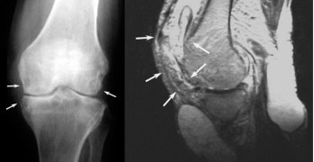 Tuberculosis of Knee Joint – Diagnosis and Treatment