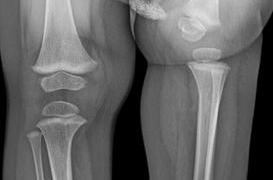 Proximal Femoral Focal Deficiency or PFFD