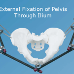 External Fixation of Pelvis – Indication and Procedure