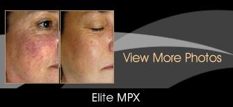 Elite MPX