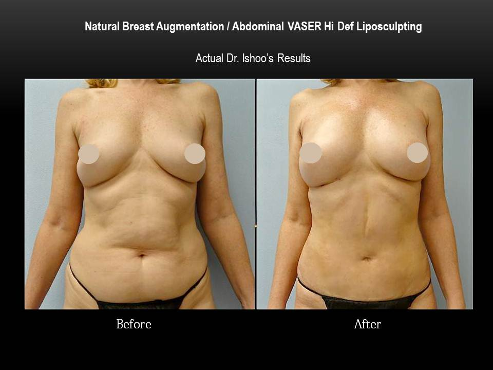 Breast Enhancement With Fat