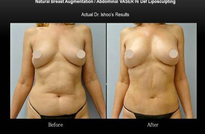 Natural-Breast-Augmentation---Abdominal-VASER-Hi-Def-Liposculpting--Dr.-Ishoo-Boston