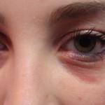 allergy-eyes-150x150