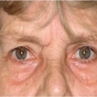 eyes-hollows-150x150