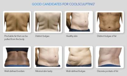coolsculpting2-1