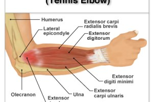 Ask the Doc: Elbow Pain By Dr. Vince DiSaia