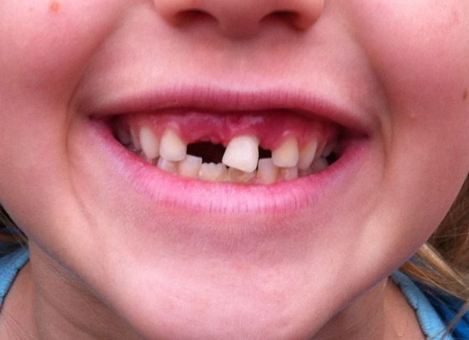 The final incisor.