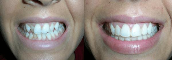 Преди ислед лечение с брекетите