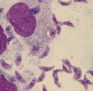 Brain parasites