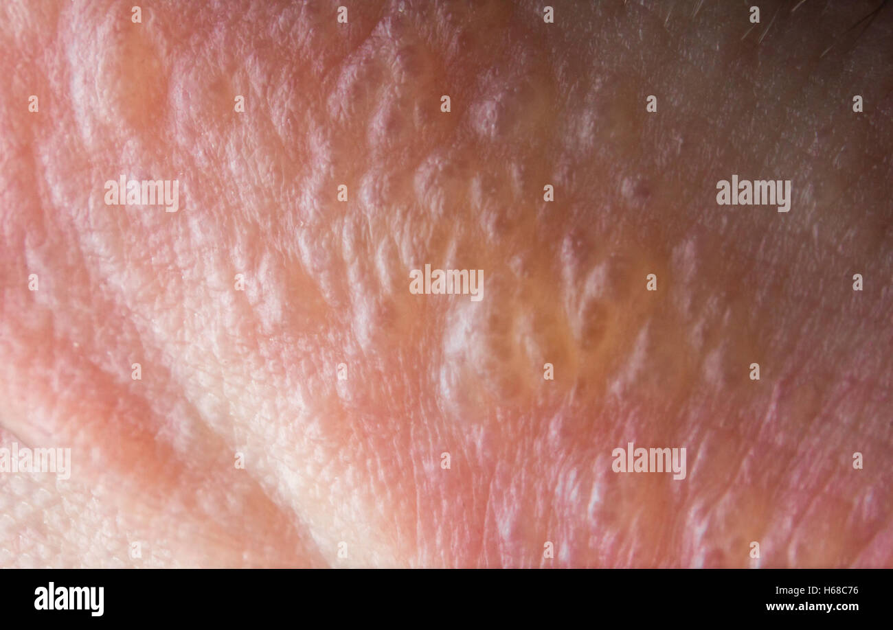 Poison Ivy Rash Stock Photos   Poison Ivy Rash Stock Images   Alamy Close up macro poison ivy rash blisters on human skin   Stock Image