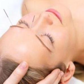 facial-acupuncture-15