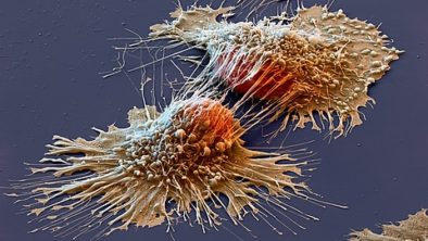 Cancer: Why it Happens and How to Address It
