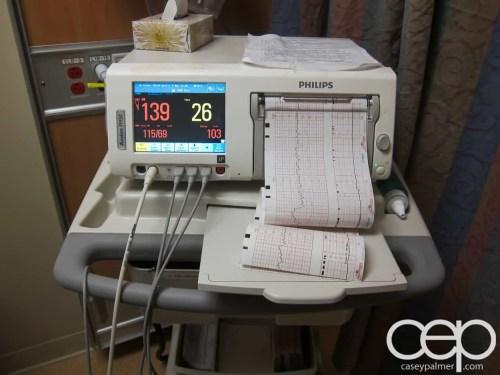 The DoomzToo Birth Story — Toronto East General Hospital — Birth Monitor