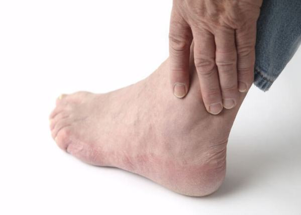 Gout is a painful and potentially disabling form of arthritis that affects over 3 million Americans. It can cause an attack of sudden burning pain, usually in your big toe.