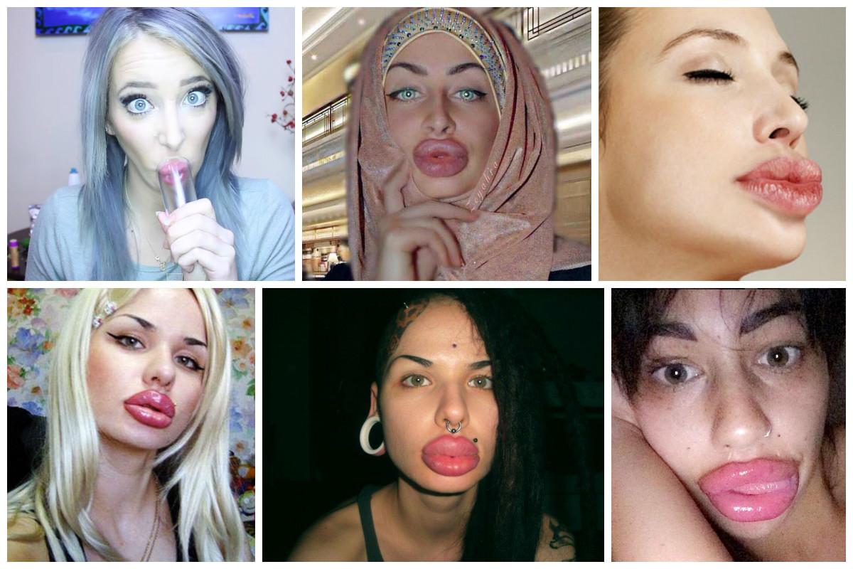 Чем подкачивают губы