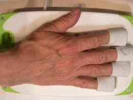 Dynamometer for Post Stroke Rehabilitation