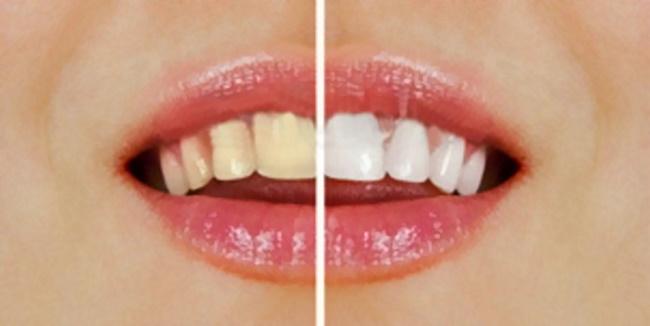 【牙齒美白】費用、推薦方法 10