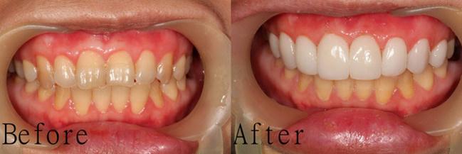 【牙齒美白】費用、推薦方法 5