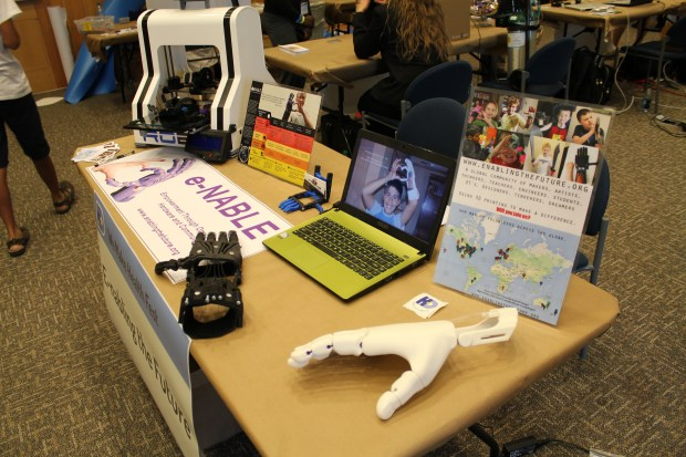3D-printed prostheses by e-NABLE