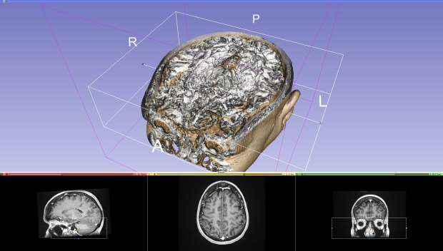 When Balzer compiled images of Scott's skull into this 3D render, the form and shape of the tumor became visibile.