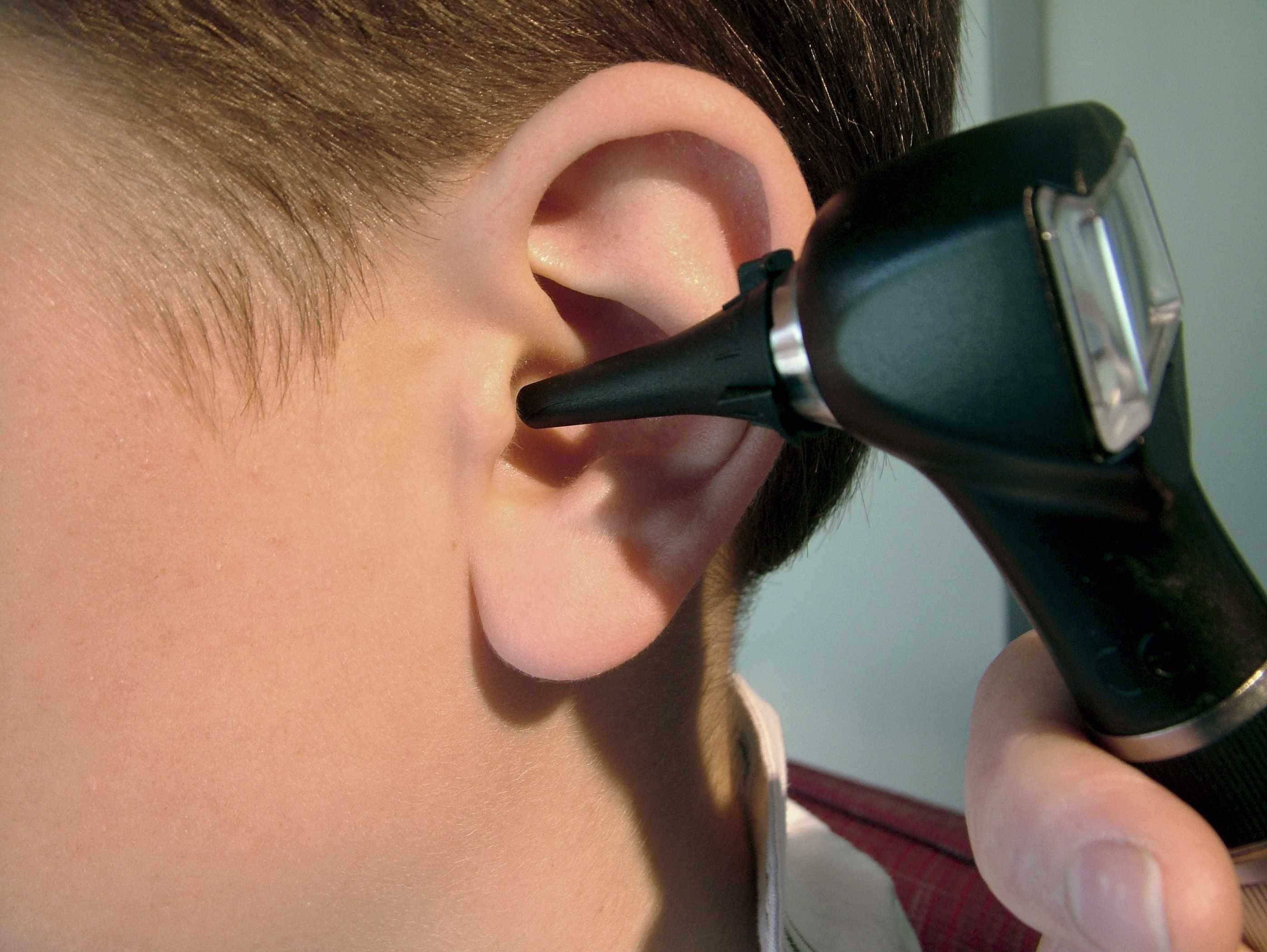 Fullsize Of Ear Infection Hydrogen Peroxide