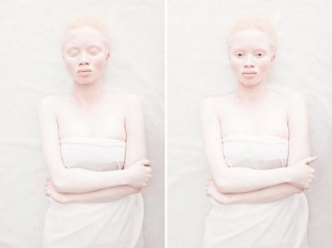 @albinoslove