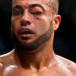 UFC 188: Eddie Alvarez and the Swollen Eye