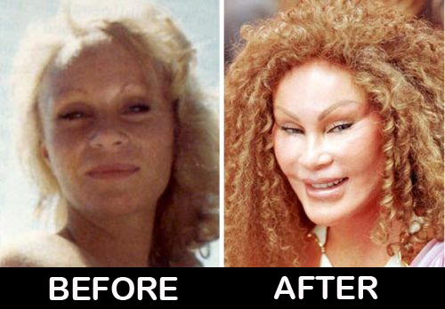 Catwoman-Jocelyn-Wildenstein-before-after-plastic-surgery-photos