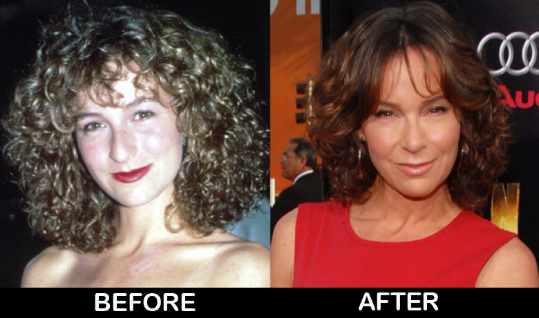 jennifer-grey-before-after-plastic-surgery-photos
