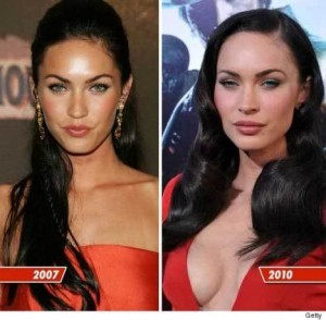 megan-fox-plastic-surgery-300x294