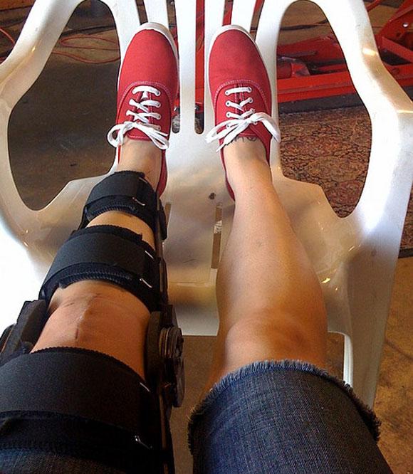 acl-knee-surgery-brace.jpg