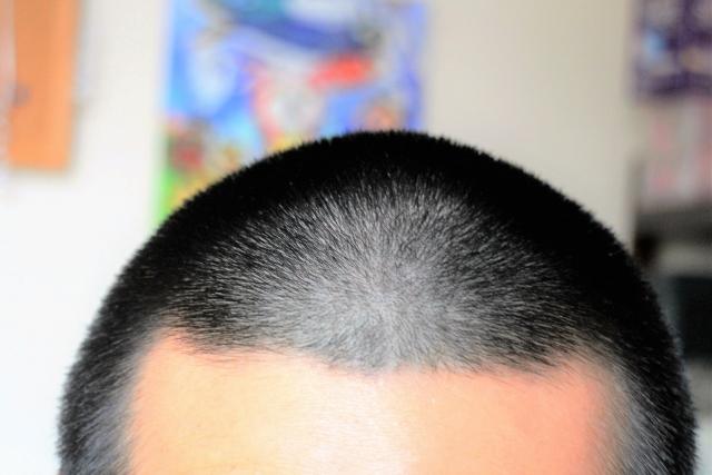 髪の毛を早く伸ばす方法学生