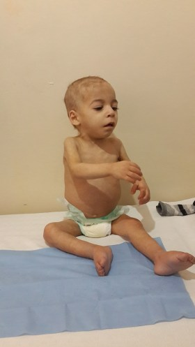 Khaled, before his treatment.