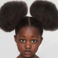 KINKS: GENETICS AND HAIR GROWTH