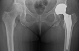 prothese-de-la-hanche-chirurgie
