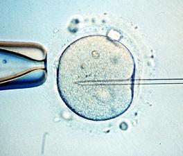 17. Costa Rica: Prohibición de la fecundación in vitro merece la condena de la Corte Interamericana de Derechos Humanos