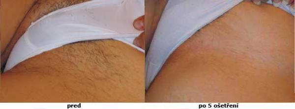 epilazione laser area bikini kazani