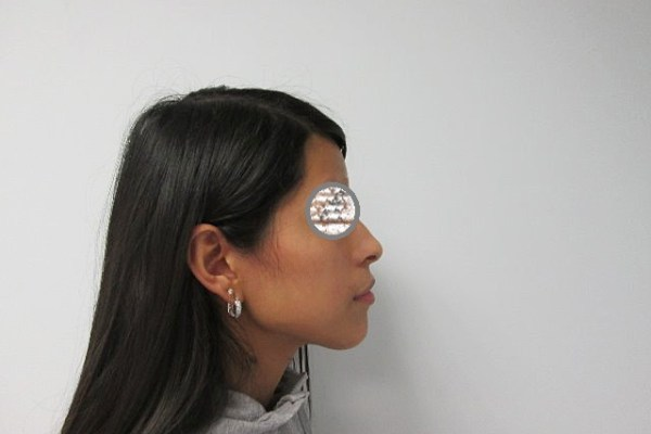 Paciente Clinica Mariana Sacoto Navia perfil 2