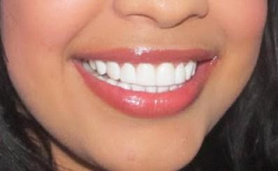ortodoncia invisible barcelona y estetica dental nº 1