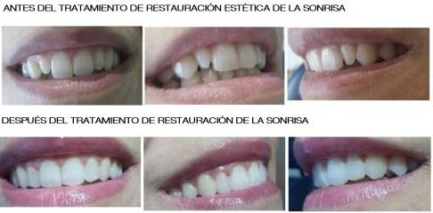 Clinica Mariana Sacoto Navia expertos en diseño de sonrisas Ortodoncia invisible Barcelona Invisalign