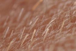 vellus-hair