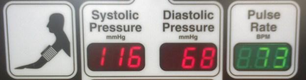 Presión Sistólica y Diastólica como resultado de una lectura del tensiómetro