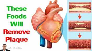 WATCH: These 10 Foods Will Remove Plaque From Your Arteries and Improve Circulation