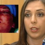 Handcuffed white female nearly beaten to death by BART officer. No media firestorm