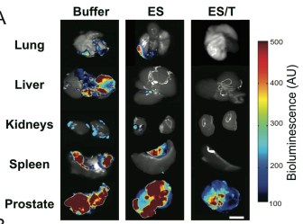 "Mice in the control groups ( ""Buffer"" and ""ES"") showed widespread metastasis to internal organs. mice treated with E-selectin/TRAIL liposomes (""ES/T"") showed no spread of cancer to the other organs"