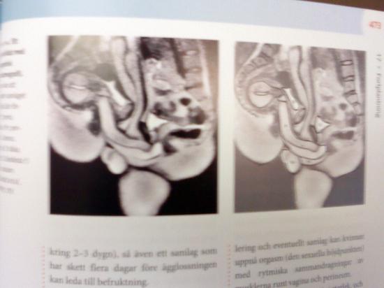 CT-scan av samlag
