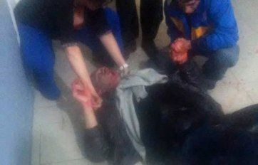 Uno de los heridos en el ataque.